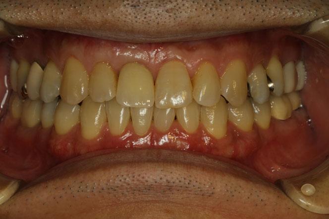 インプラントの歯茎の再生治療後の状態