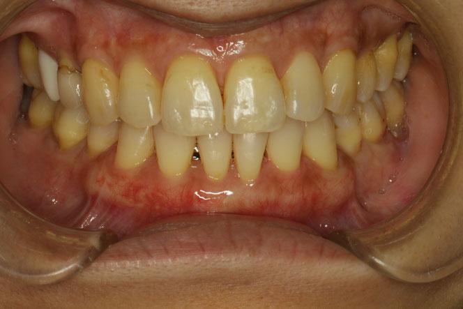 歯茎の位置を回復し、歯茎の厚みを厚くしています。