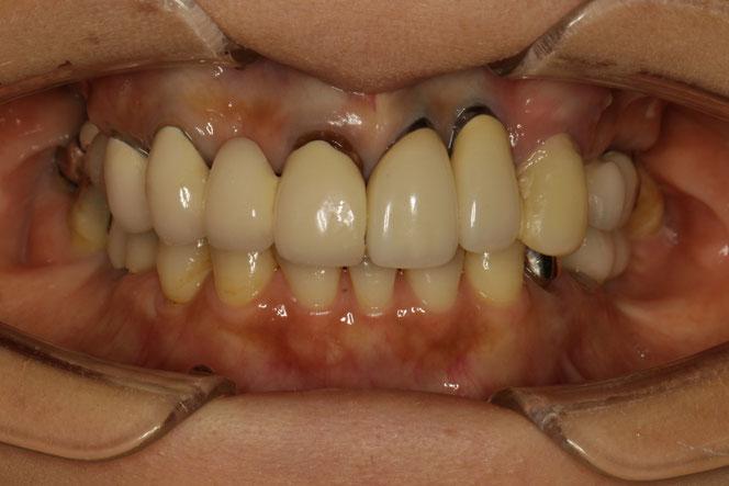 インプランとの歯茎下がってしまった場合の歯茎の再生治療ケース 治療前
