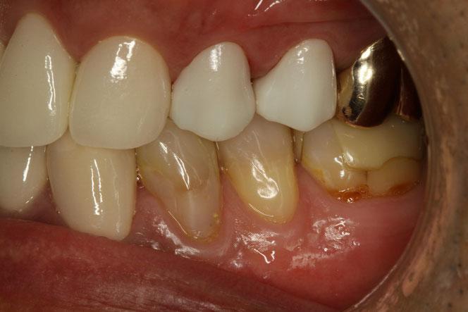 ゼノスターオールセラミック 審美歯科