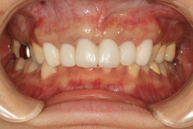 結合組織移植と仮歯で歯茎の位置と歯の長さを修正している状態