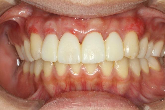 歯茎の再生治療