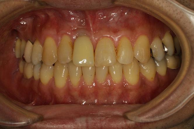 仮歯に交換した状態 治療中