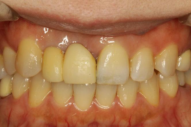 ブリッジの歯茎のくぼみ