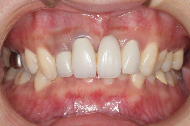 治療前の長い歯
