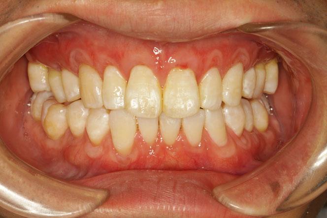 全体的に歯茎が下がってしまった場合の歯茎の再生治療