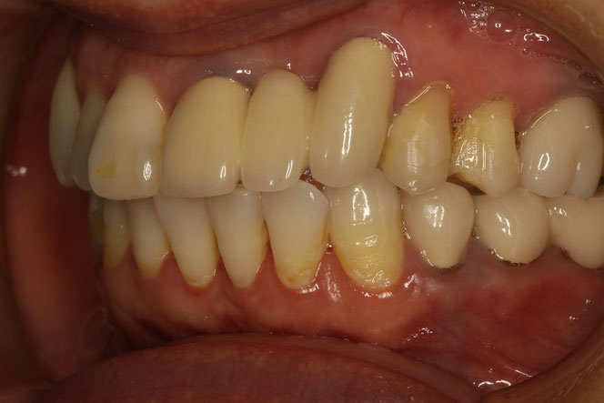 オールセラミックブリッジの歯茎が下がってしまったケース