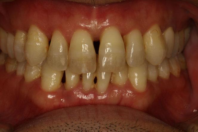 歯周病の方の審美歯科治療 歯の固定を必要とするケース