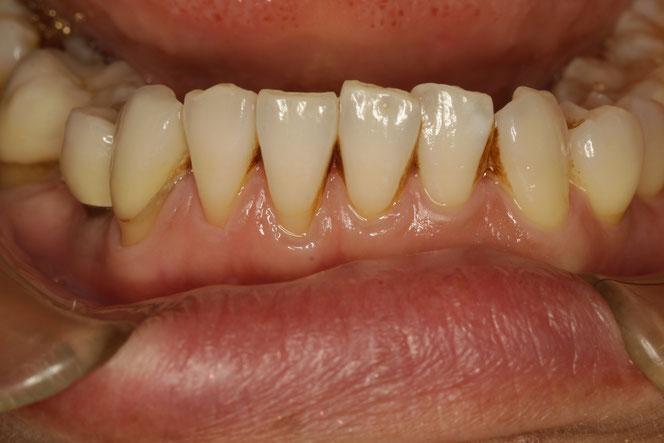 歯茎の再生治療後の状態。