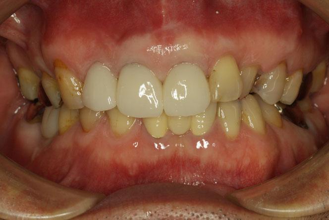 歯茎の再生治療とオールセラミック 治療で歯茎の黒ずみを改善したケース 38