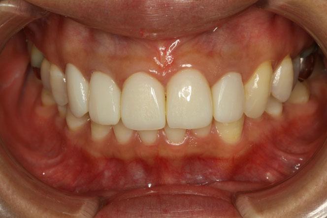 仮歯 審美歯科