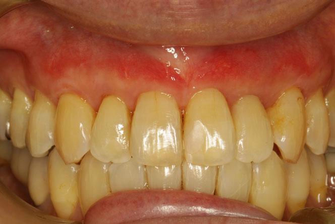 歯ぐきの再生治療で露出した根っこを覆った状態。