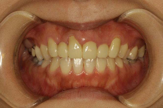 形の悪いオールセラミック の差し歯