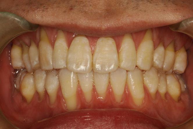 矯正治療後に全体的に歯茎が下がって来たケース