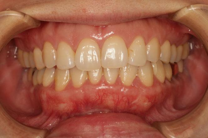 下の前歯と奥歯の歯茎再生 治療後