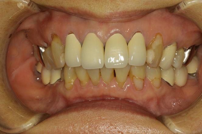 差し歯を含めて歯茎が下がりやすい方