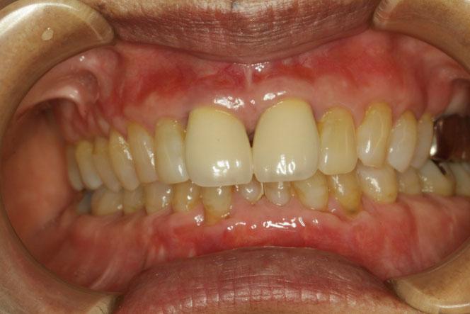 歯茎の再生治療とレジン充填で見た目も回復しました。