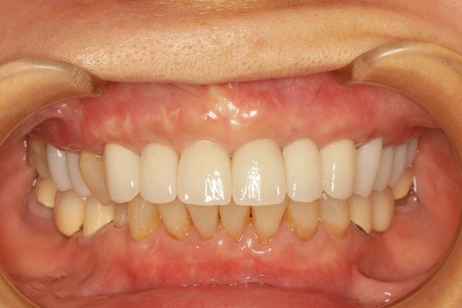 歯茎の厚みを増やして歯の大きさを小さくしたケース