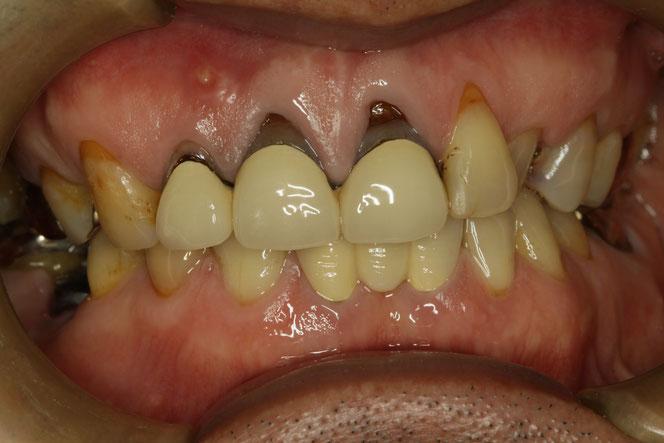 差し歯の歯茎が下がって黒く見える