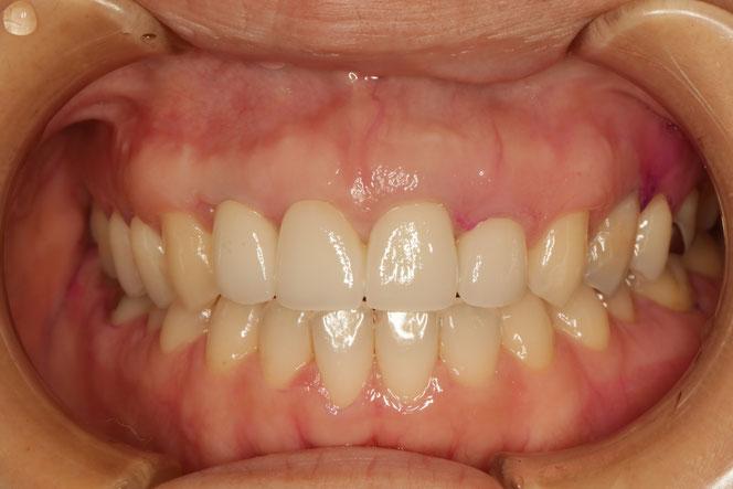 歯茎の再生 61 歯茎の再生とオールセラミックブリッジケース