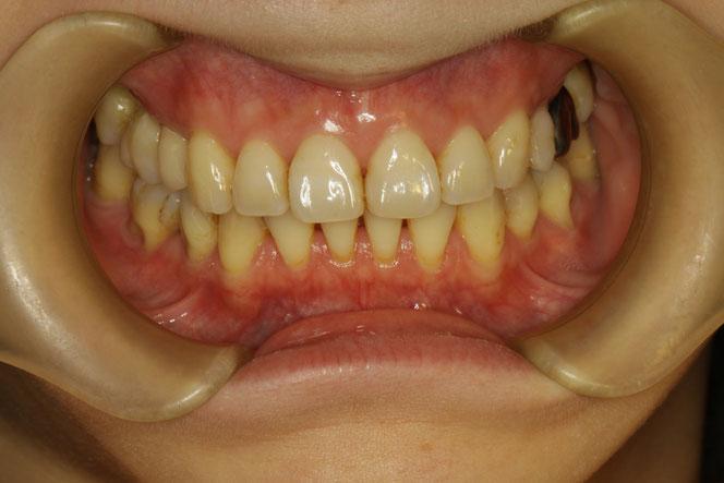 矯正治療後に歯ぐきが下がってしまった