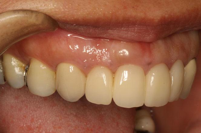 治療後は定期的にお掃除をする事で歯茎の腫れや歯周病の進行を予防します.