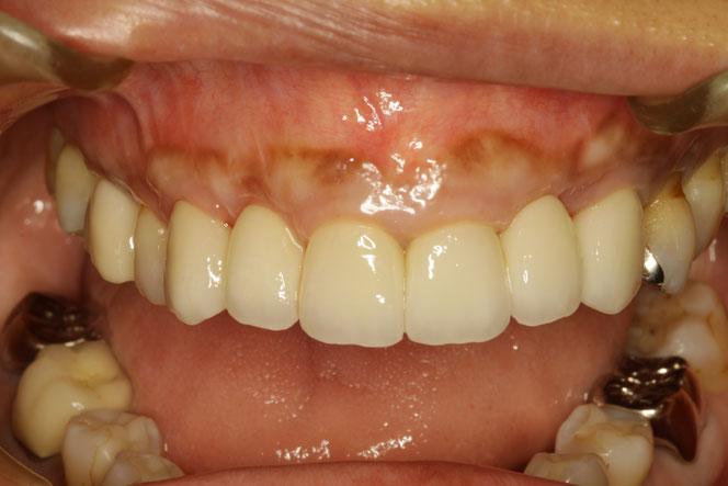 歯茎の再生治療とオールセラミックブリッジで審美歯科治療