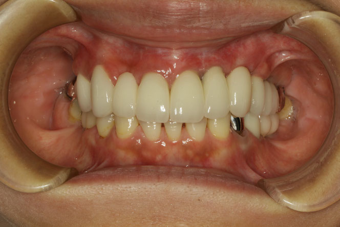 インプランとの歯茎下がってしまった場合の歯茎の再生治療ケース 治療後