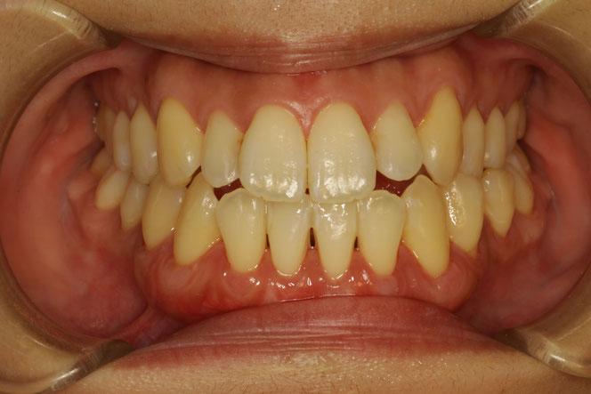 矯正治療後に歯茎の再生を行った場合