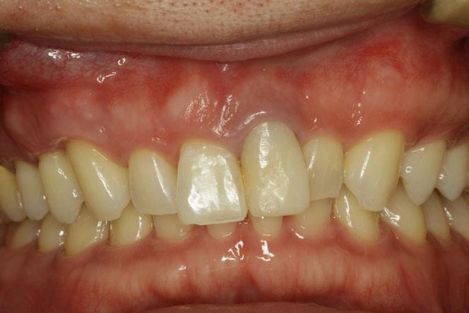 差し歯の歯茎が下がってしまった時の審美歯科治療