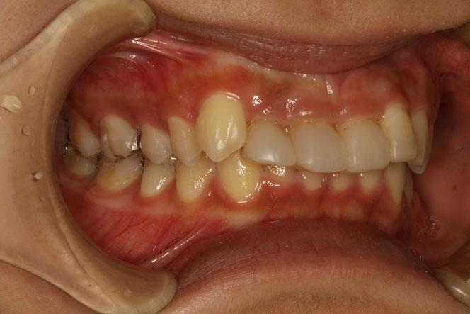 審美歯科で歯茎の整形