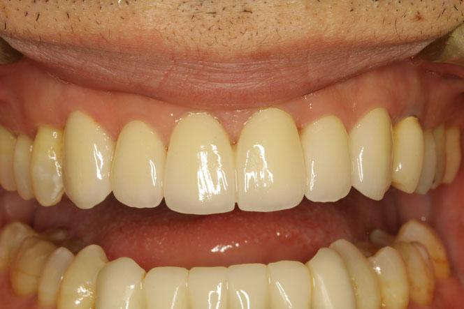 歯周病の方の審美歯科治療 歯の固定