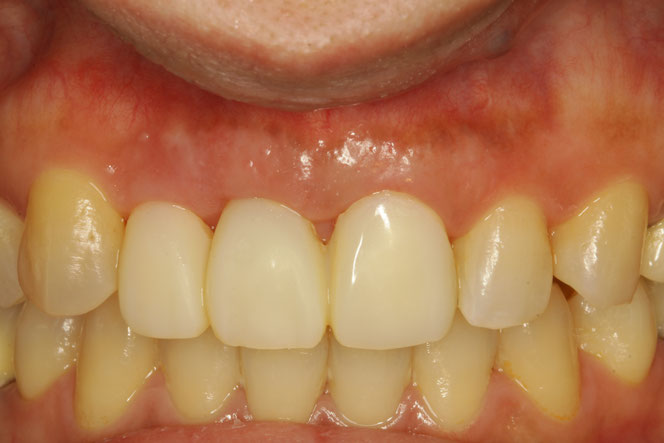 歯茎の再生とブリッジの仮歯