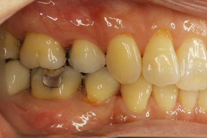 歯ぐきの再生治療と虫歯
