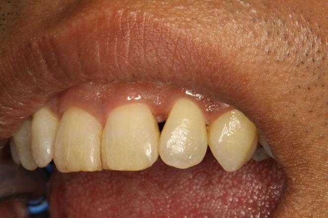 歯と歯の間にできた隙間の治療