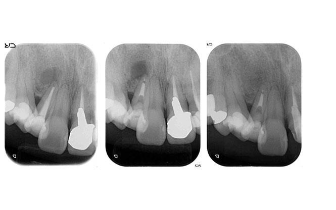 歯の根っこの先の炎症