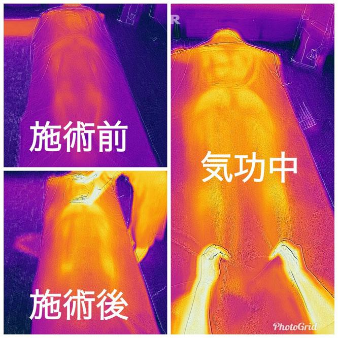 気功前と気功後の体温変化の違い