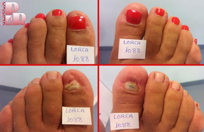 Uñas de resina para el tratamiento de uñas distróficas para mejorar su aspecto estético