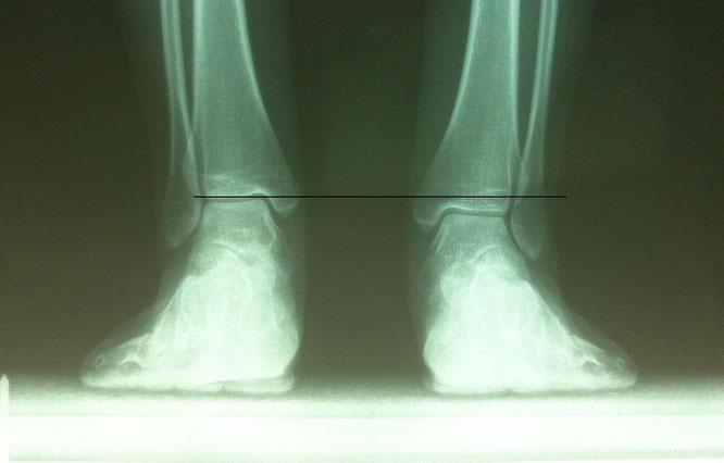 Dismetria detectada en estudio biomecánico y confirmada con estudio radiológico del pie