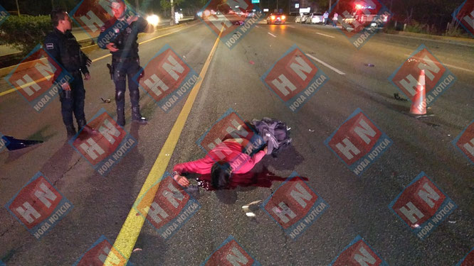 El cuerpo del motociclista sufrió múltiples fracturas tras el brutal impacto.