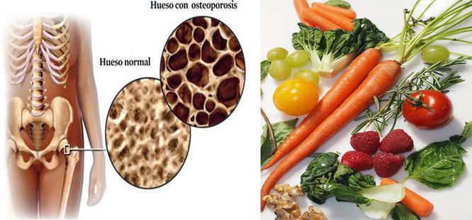 Noviembre 2016 tu blog sobre vida saludable y bienestar personal - Alimentos para la osteoporosis ...