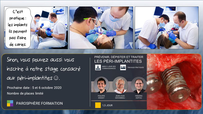 ParoSphère Formation - Stage Péri-implantite