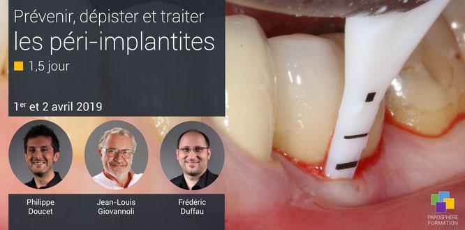 ParoSphère Formation | Formation Spéciale Péri-implantite