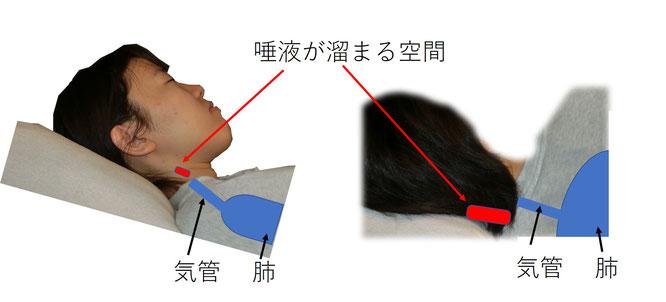 仰臥位では重力により肺に向かうが、完全側臥位では、重力に逆らって唾液や鼻水が肺に向かうことができない。