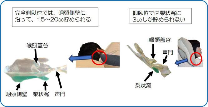 仰臥位と完全側臥位での食材が溜まる場所と量と声門との位置関係の比較。仰臥位は誤嚥しにくいが完全側臥位は誤嚥しない。