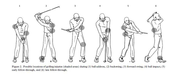 Cabri J et al. Golf-related injuries: A systematic reviewより引用