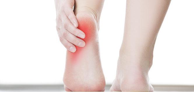 足底腱膜炎 足底筋膜炎 OUMIスポーツカイロプラクティック 立川
