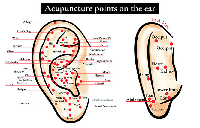 Akupunktur ohne Nadeln Elektroakupunktur Akupunkturpunkt Ohr Reflexpunkte