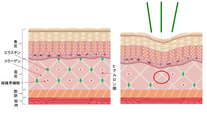 皮膚の構造と鍼刺激