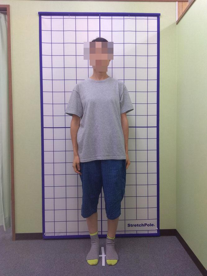 O脚患者さんの姿勢検査
